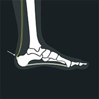 Hælspore bak på foten