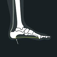 Hælspore under foten